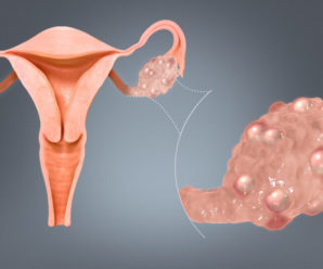 How to treat poly cystic ovary syndrome?