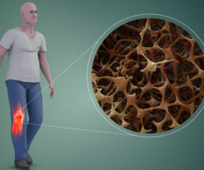 How to prevent and treat Osteoporosis?