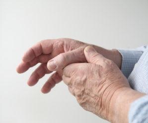 How to rheumatoid arthritis patients?